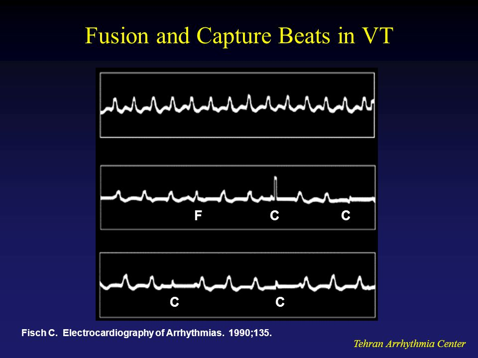 Tehran Arrhythmia Center Fusion and Capture Beats in VT Fisch C.