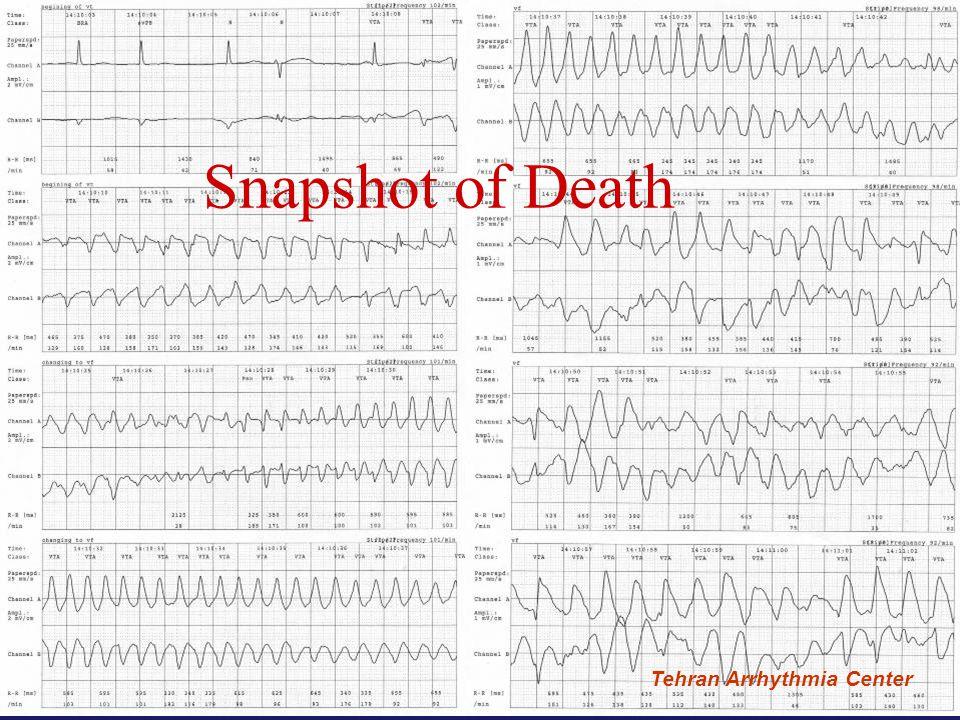 Tehran Arrhythmia Center Snapshot of Death