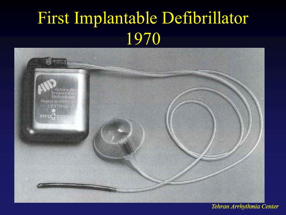 Tehran Arrhythmia Center First Implantable Defibrillator 1970