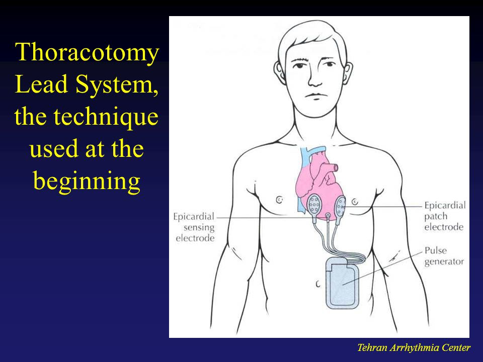Tehran Arrhythmia Center Thoracotomy Lead System, the technique used at the beginning