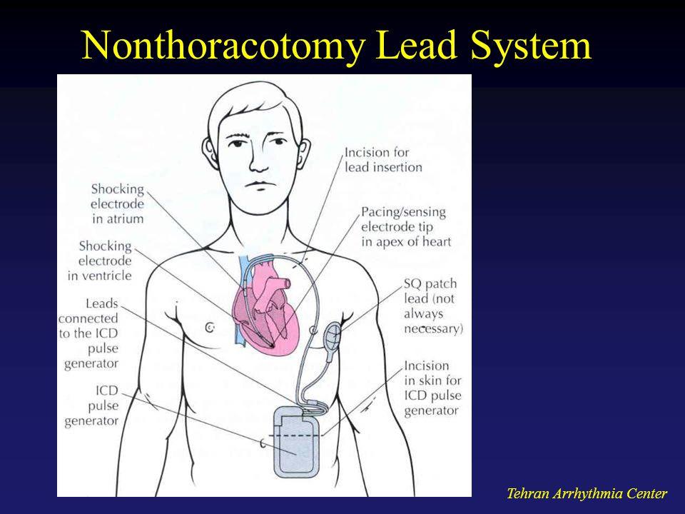 Tehran Arrhythmia Center Nonthoracotomy Lead System