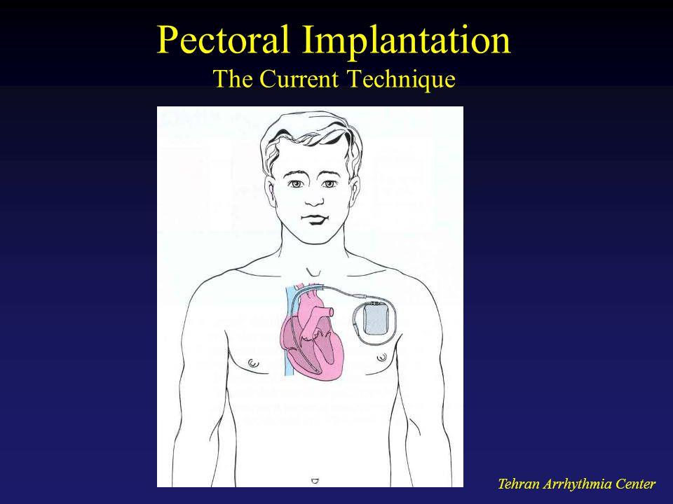 Tehran Arrhythmia Center Pectoral Implantation The Current Technique