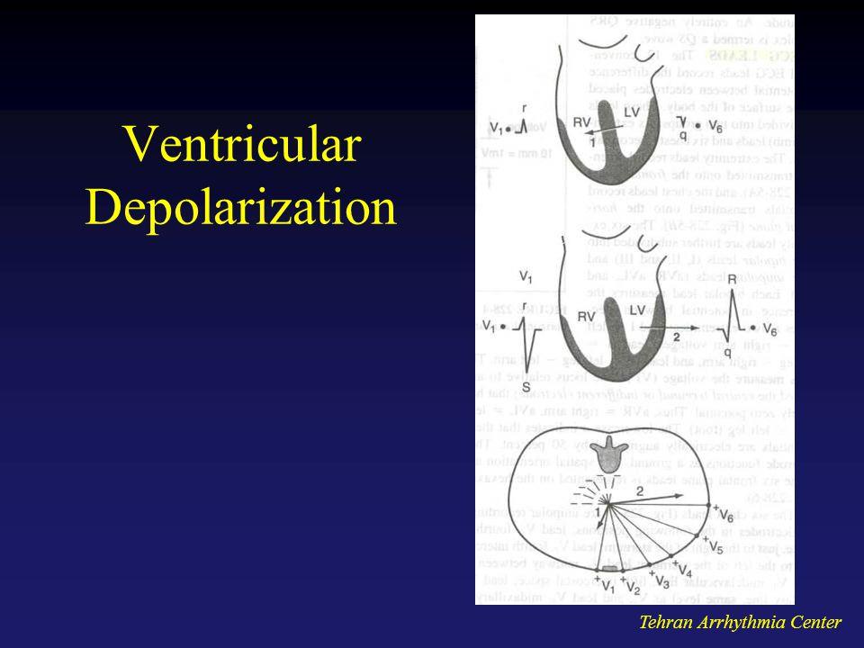 Tehran Arrhythmia Center Ventricular Depolarization