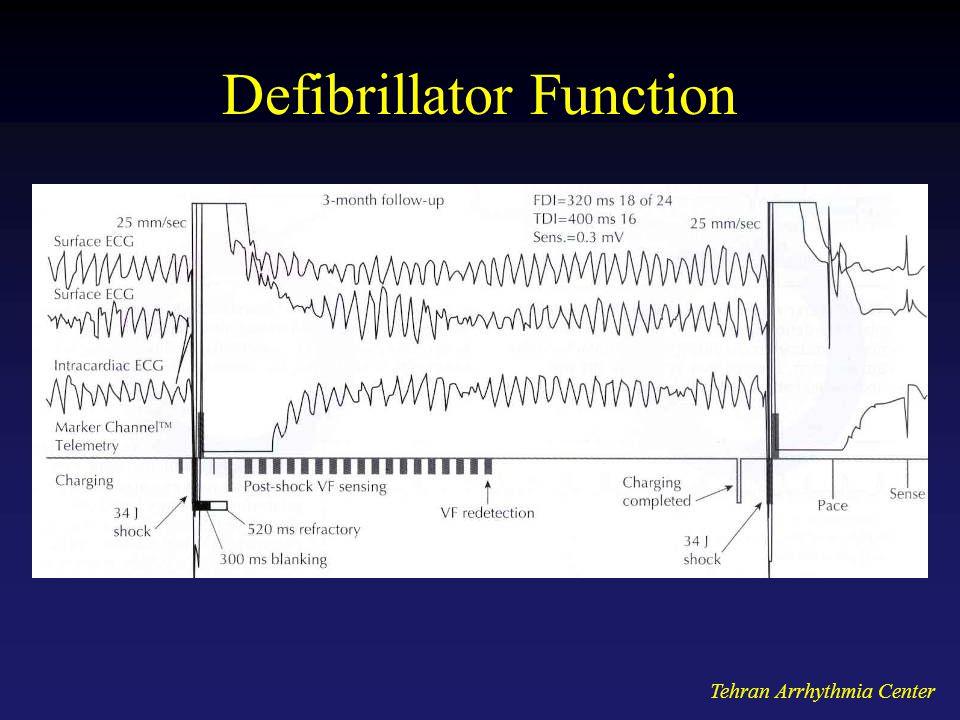 Tehran Arrhythmia Center Defibrillator Function