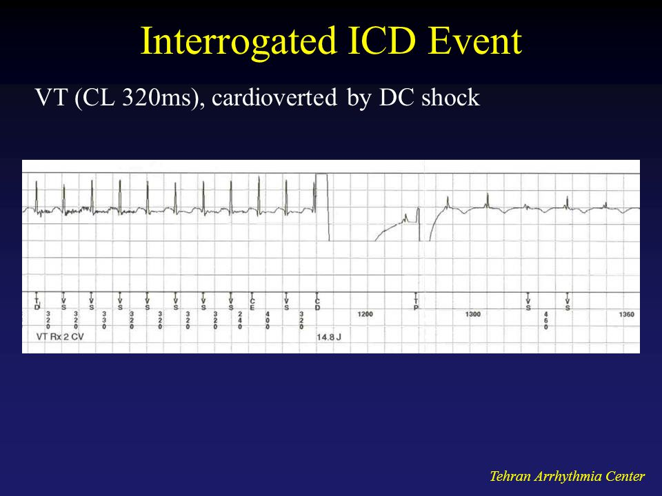Tehran Arrhythmia Center Interrogated ICD Event VT (CL 320ms), cardioverted by DC shock