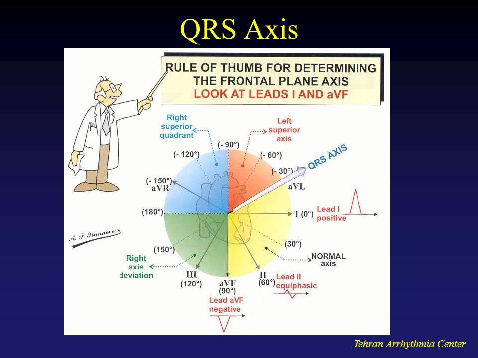 Tehran Arrhythmia Center QRS Axis