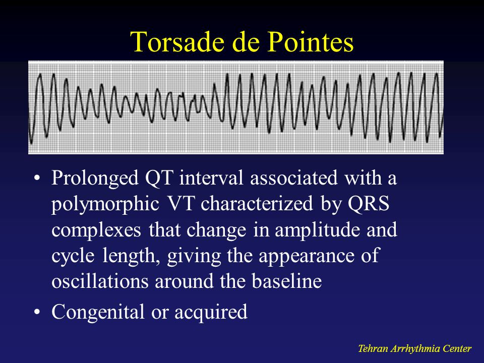 Tehran Arrhythmia Center Torsade de Pointes Prolonged QT interval associated with a polymorphic VT characterized by QRS complexes that change in amplitude and cycle length, giving the appearance of oscillations around the baseline Congenital or acquired