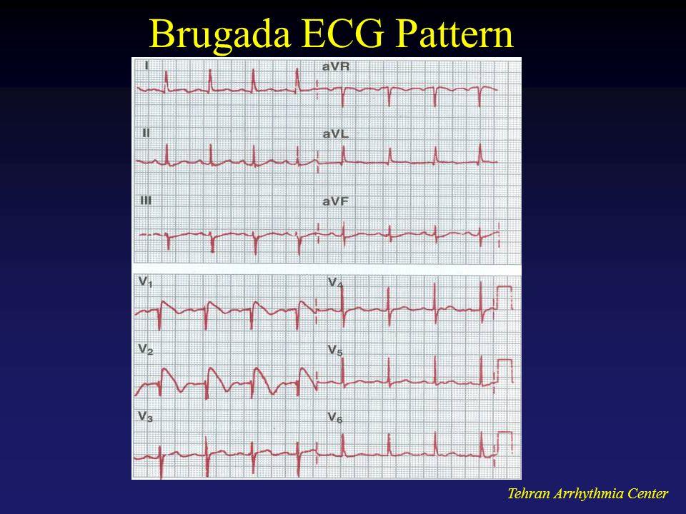 Tehran Arrhythmia Center Brugada ECG Pattern