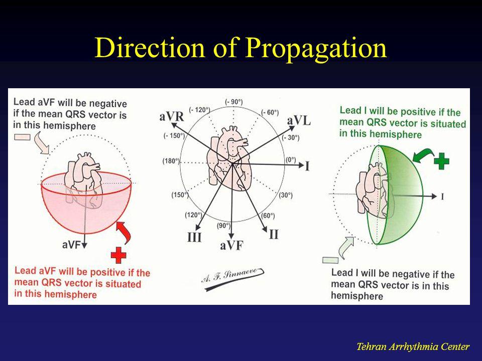 Tehran Arrhythmia Center Direction of Propagation