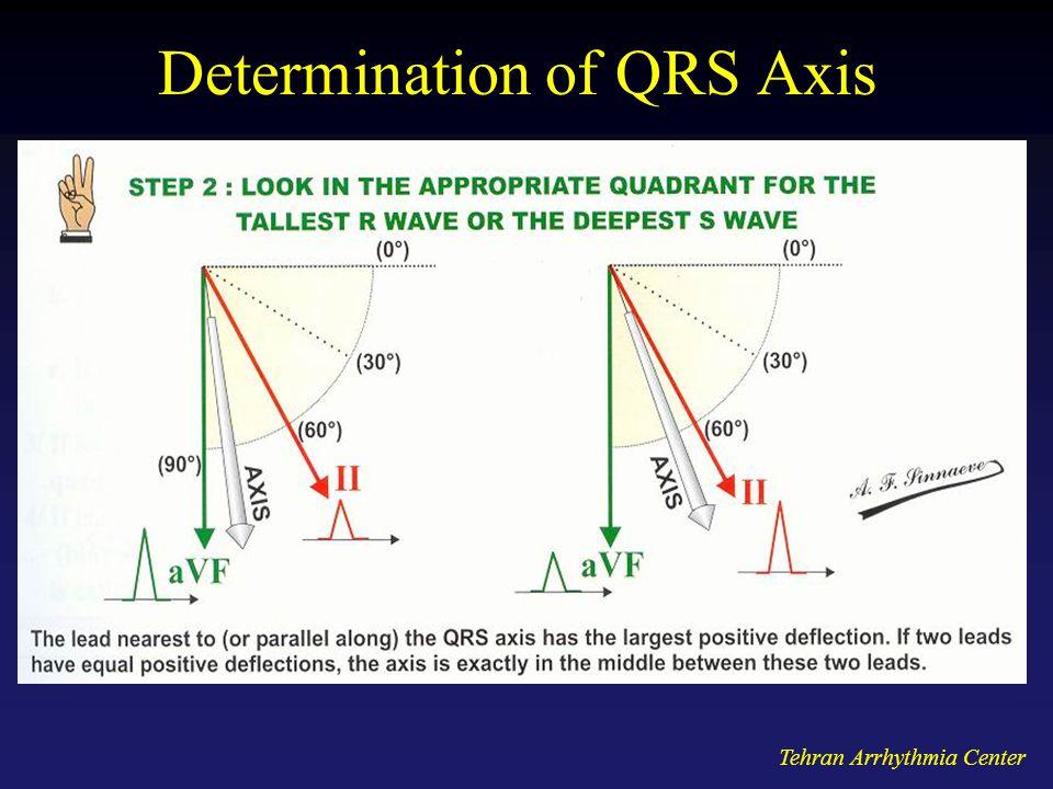 Tehran Arrhythmia Center Determination of QRS Axis