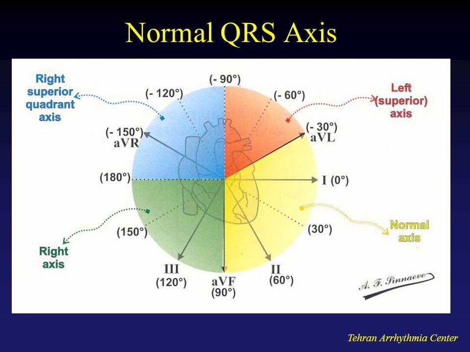 Tehran Arrhythmia Center Normal QRS Axis