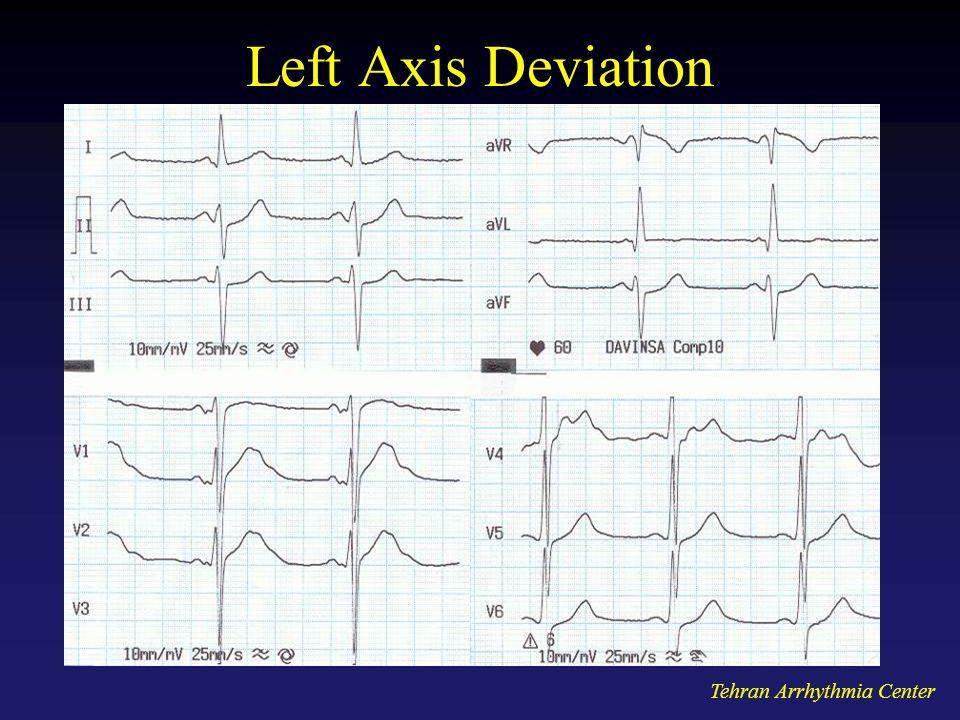 Tehran Arrhythmia Center Left Axis Deviation