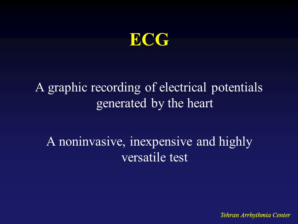 Tehran Arrhythmia Center ECG A graphic recording of electrical potentials generated by the heart A noninvasive, inexpensive and highly versatile test