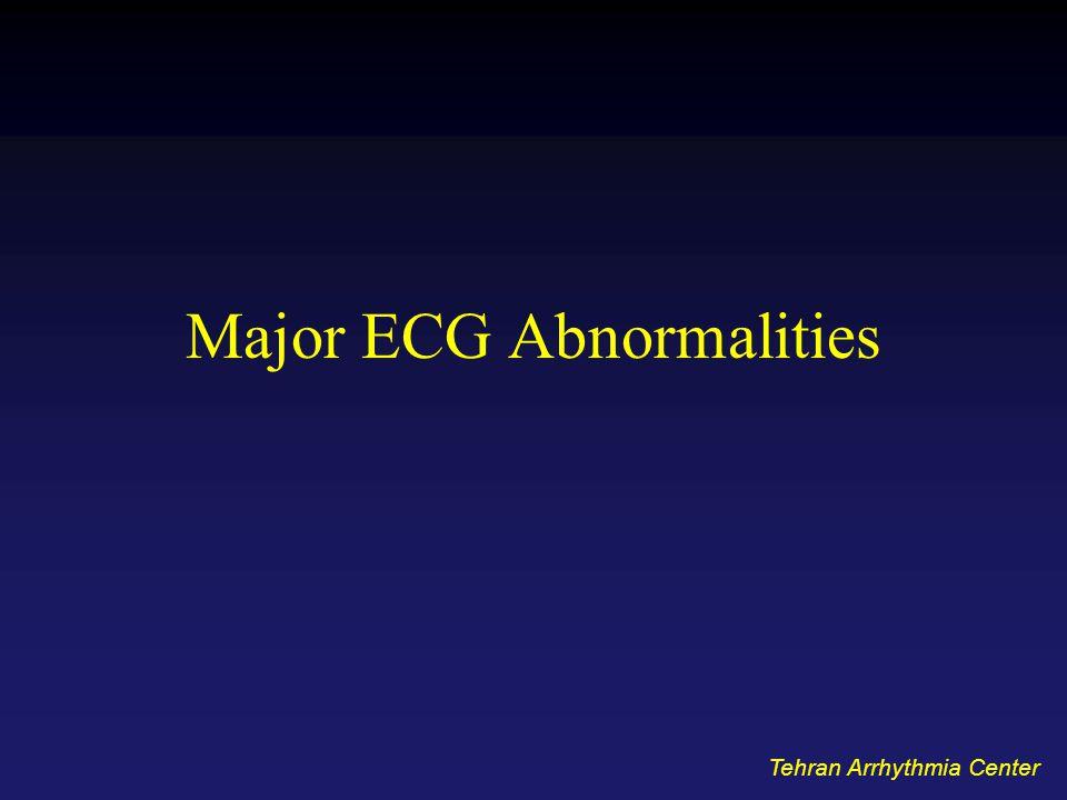 Major ECG Abnormalities Tehran Arrhythmia Center