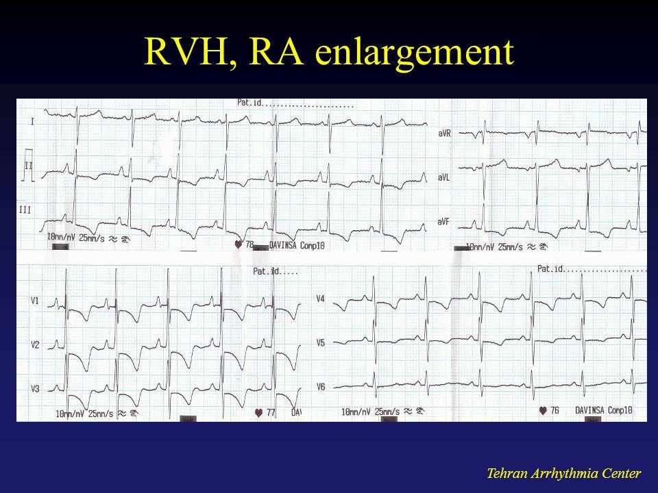 Tehran Arrhythmia Center RVH, RA enlargement