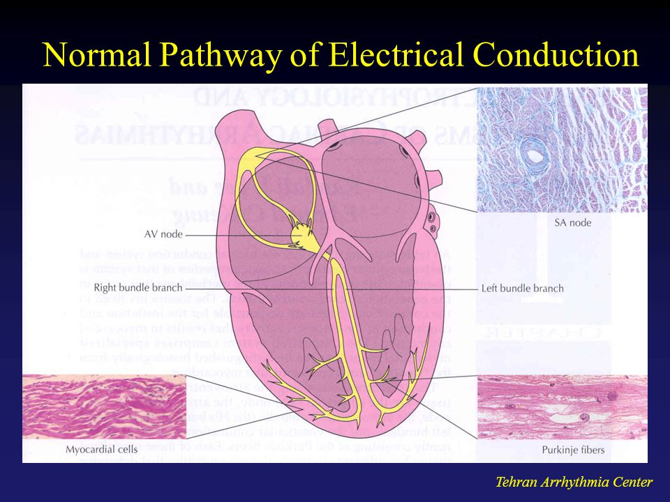 Tehran Arrhythmia Center Normal Pathway of Electrical Conduction
