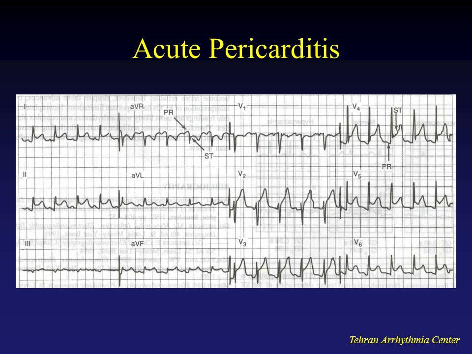 Tehran Arrhythmia Center Acute Pericarditis