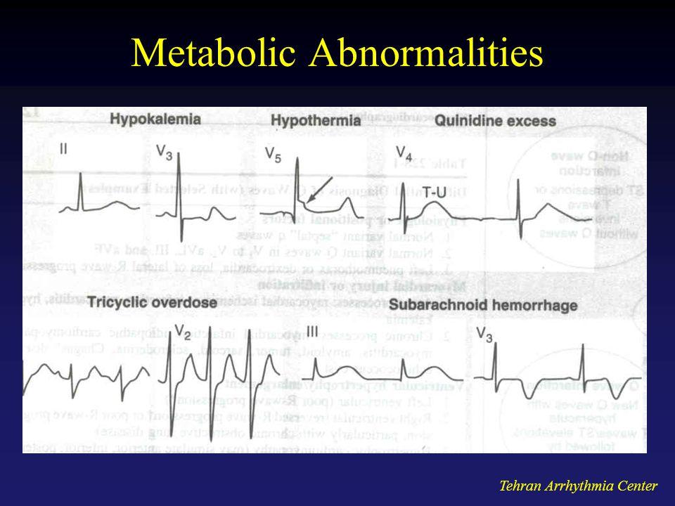 Tehran Arrhythmia Center Metabolic Abnormalities