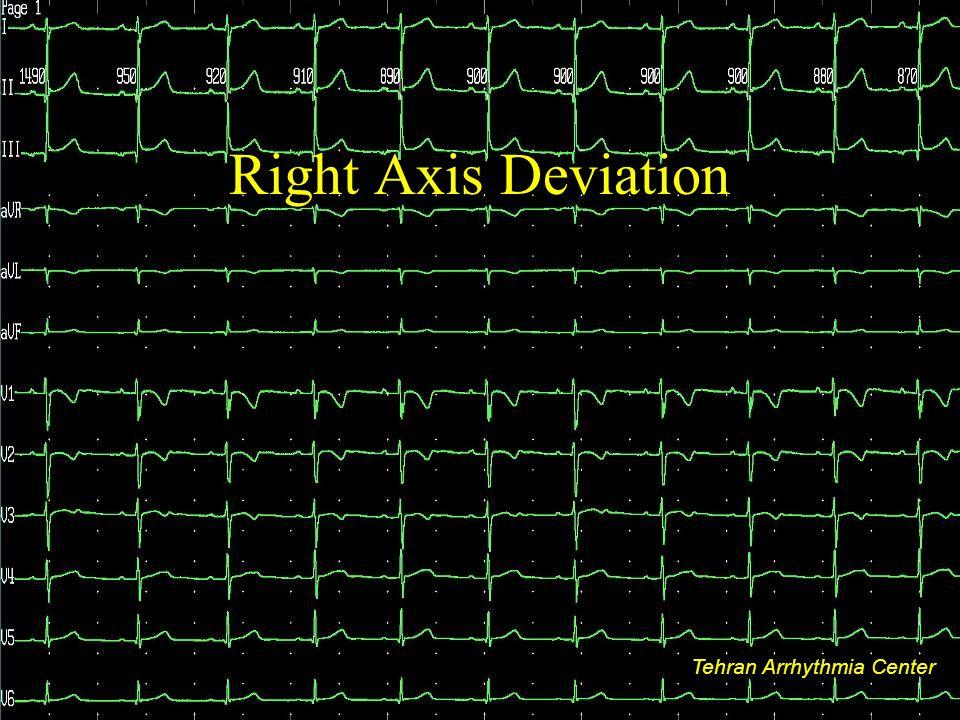 Tehran Arrhythmia Center Right Axis Deviation Tehran Arrhythmia Center