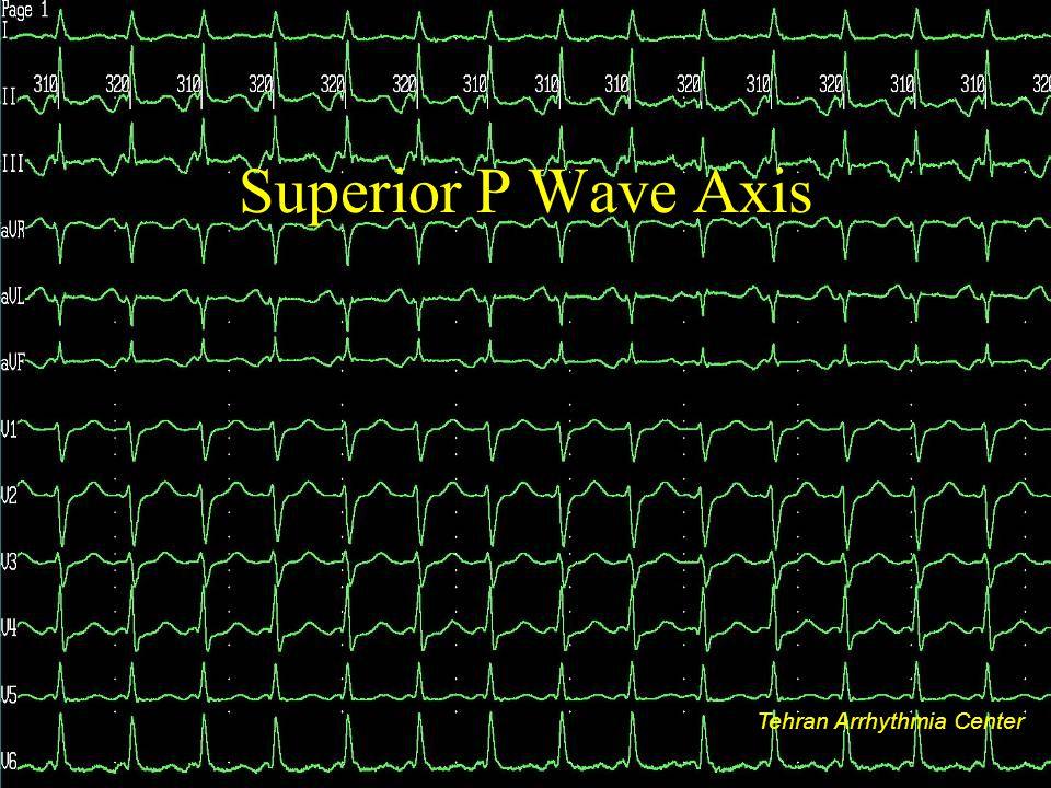Superior P Wave Axis Tehran Arrhythmia Center