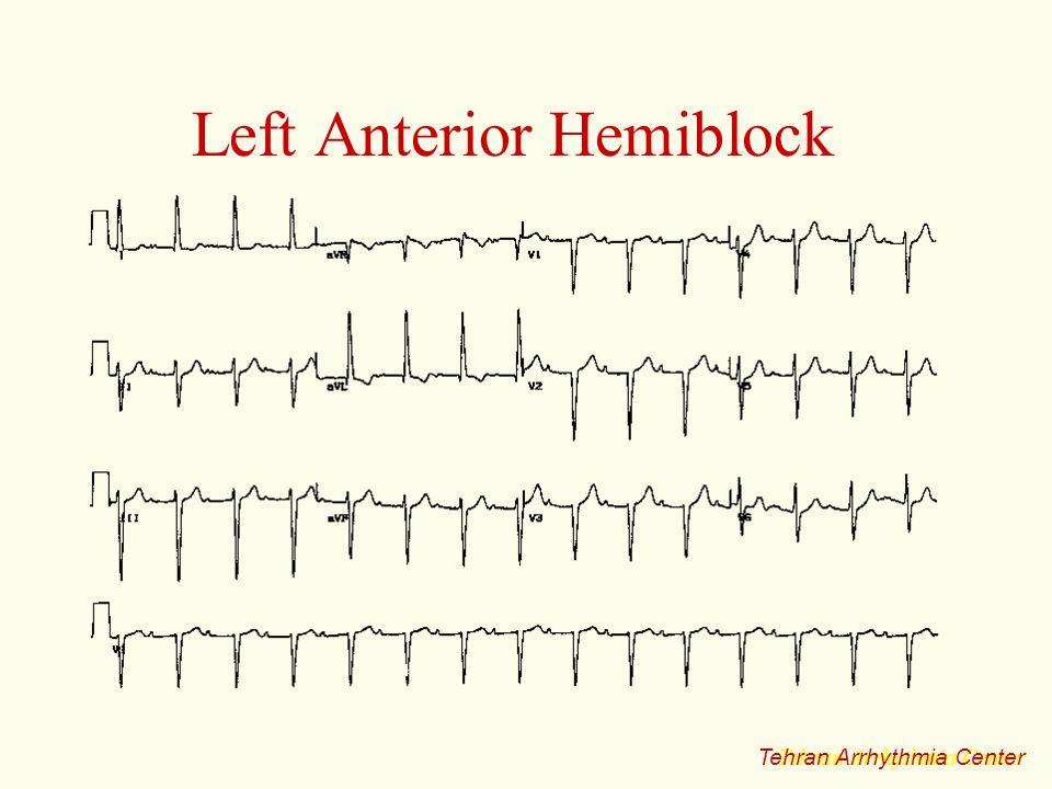 Left Anterior Hemiblock Tehran Arrhythmia Center