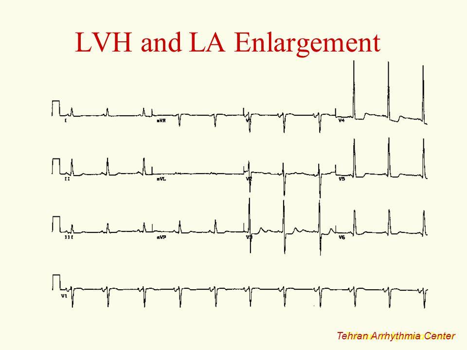 LVH and LA Enlargement Tehran Arrhythmia Center