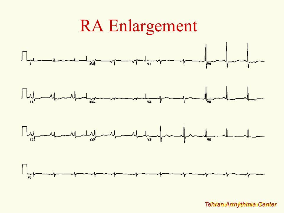 RA Enlargement Tehran Arrhythmia Center