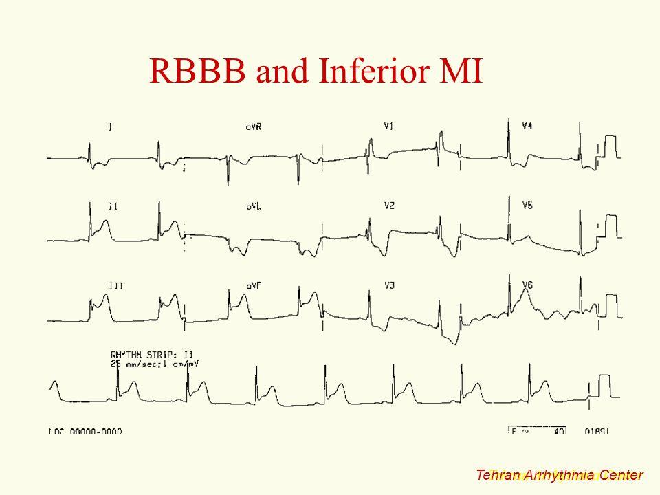 RBBB and Inferior MI Tehran Arrhythmia Center