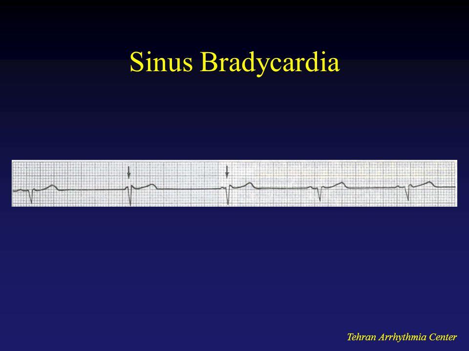 Tehran Arrhythmia Center Sinus Bradycardia