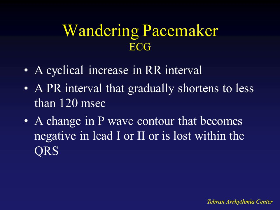 Tehran Arrhythmia Center Wandering Pacemaker ECG A cyclical increase in RR interval A PR interval that gradually shortens to less than 120 msec A change in P wave contour that becomes negative in lead I or II or is lost within the QRS