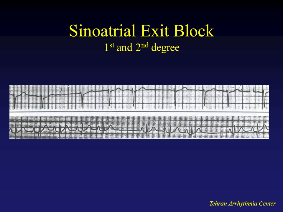 Tehran Arrhythmia Center Sinoatrial Exit Block 1 st and 2 nd degree
