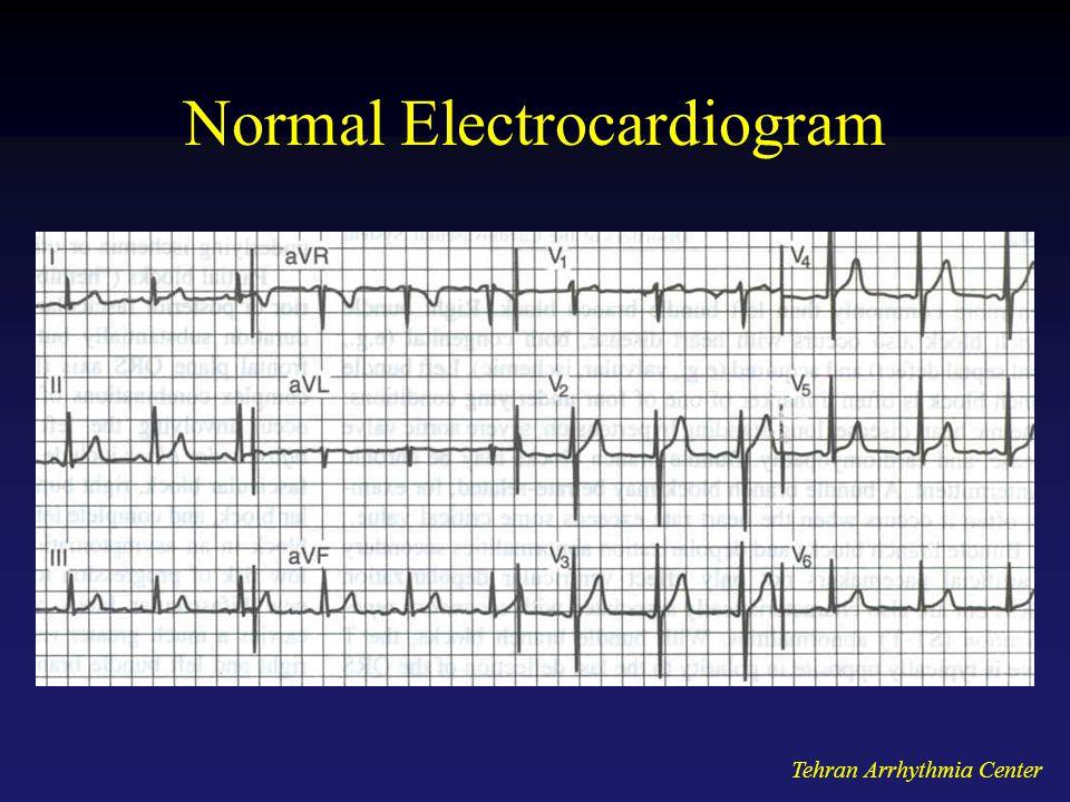 Tehran Arrhythmia Center Normal Electrocardiogram