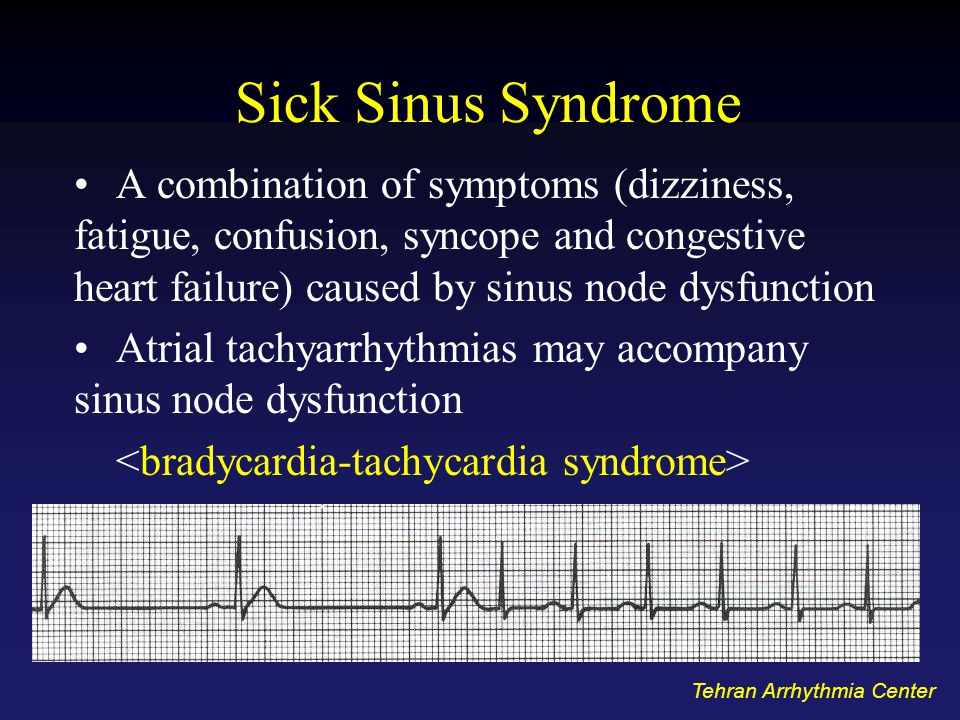 Sick Sinus Syndrome A combination of symptoms (dizziness, fatigue, confusion, syncope and congestive heart failure) caused by sinus node dysfunction Atrial tachyarrhythmias may accompany sinus node dysfunction Tehran Arrhythmia Center