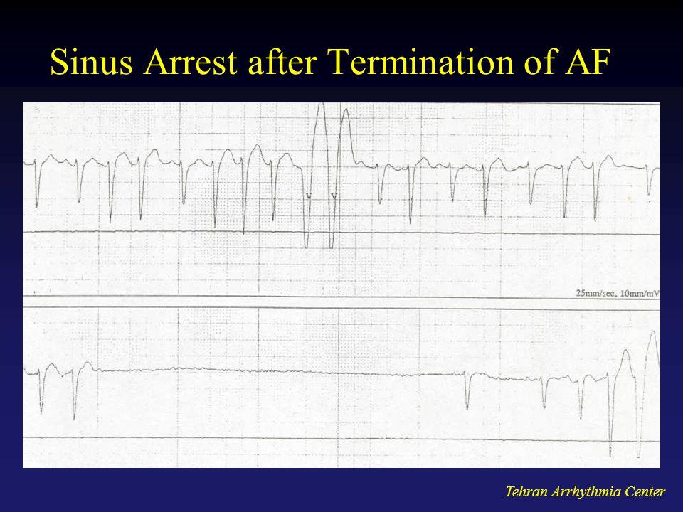 Tehran Arrhythmia Center Sinus Arrest after Termination of AF