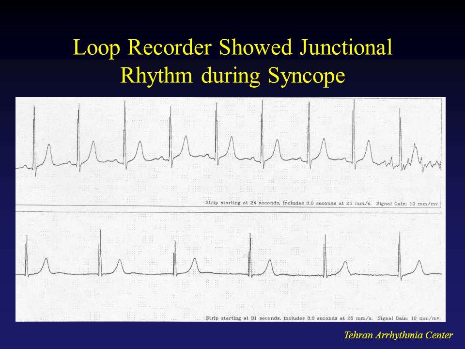 Tehran Arrhythmia Center Loop Recorder Showed Junctional Rhythm during Syncope