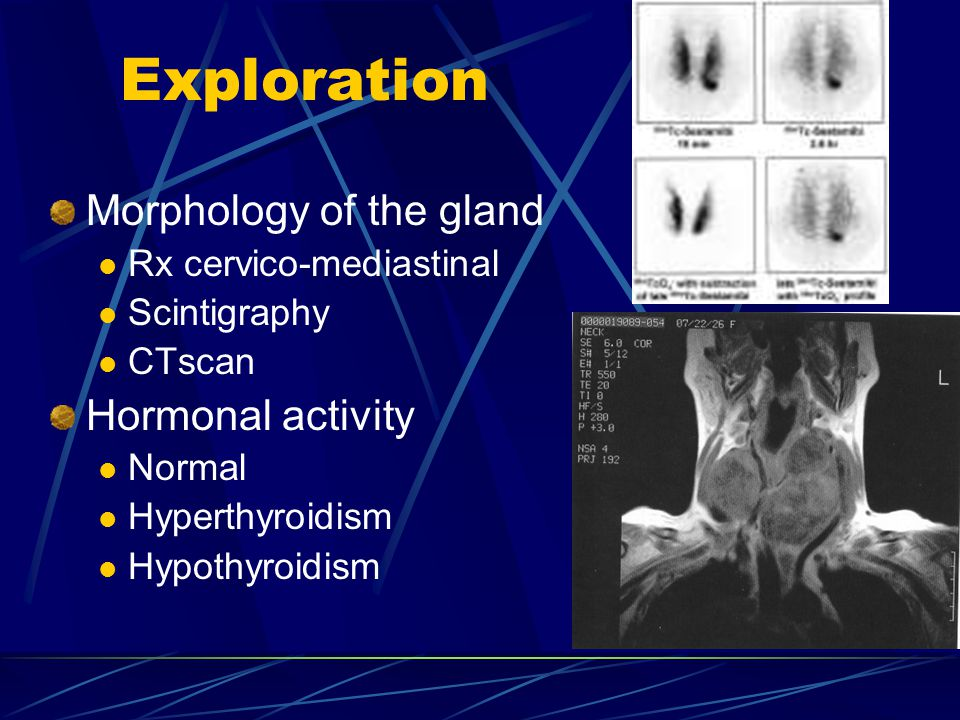 Exploration Morphology of the gland Rx cervico-mediastinal Scintigraphy CTscan Hormonal activity Normal Hyperthyroidism Hypothyroidism