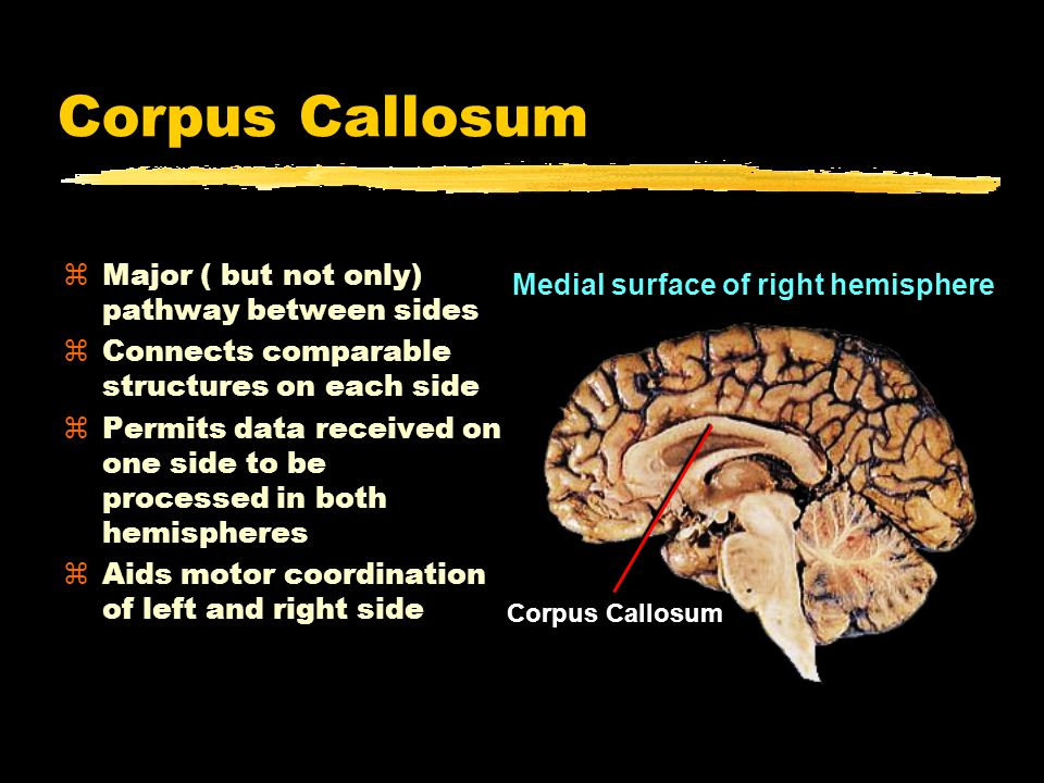 Corpus Callosum zMajor ( but not only) pathway between sides zConnects comparable structures on each side zPermits data received on one side to be processed in both hemispheres zAids motor coordination of left and right side Corpus Callosum Medial surface of right hemisphere