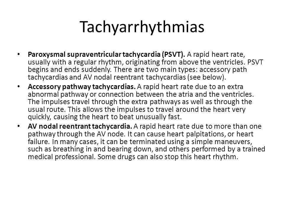 Tachyarrhythmias Paroxysmal supraventricular tachycardia (PSVT).