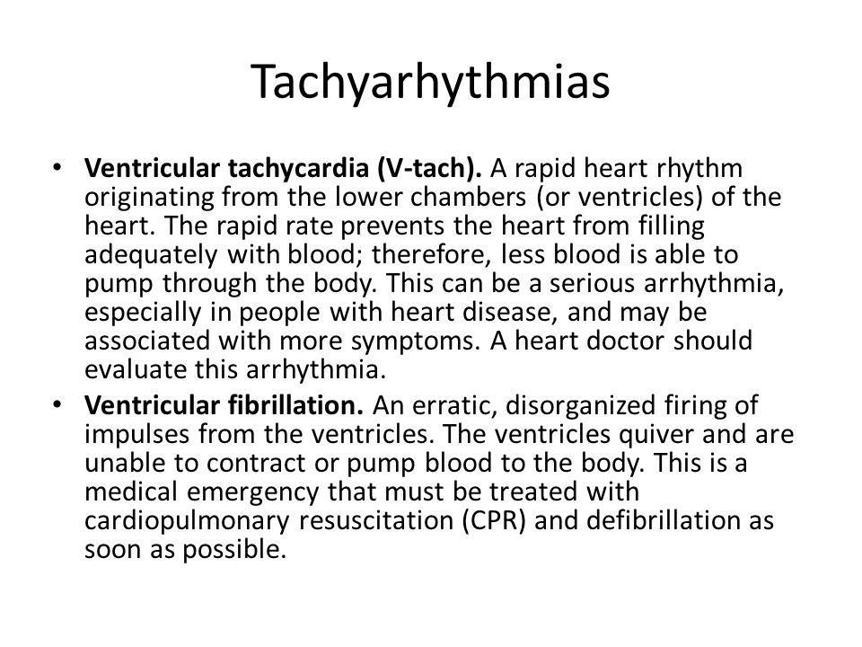 Tachyarhythmias Ventricular tachycardia (V-tach).