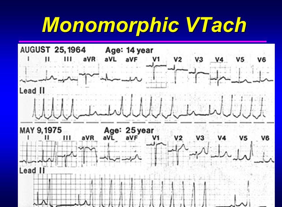 27 Monomorphic VTach Monomorphic VTach