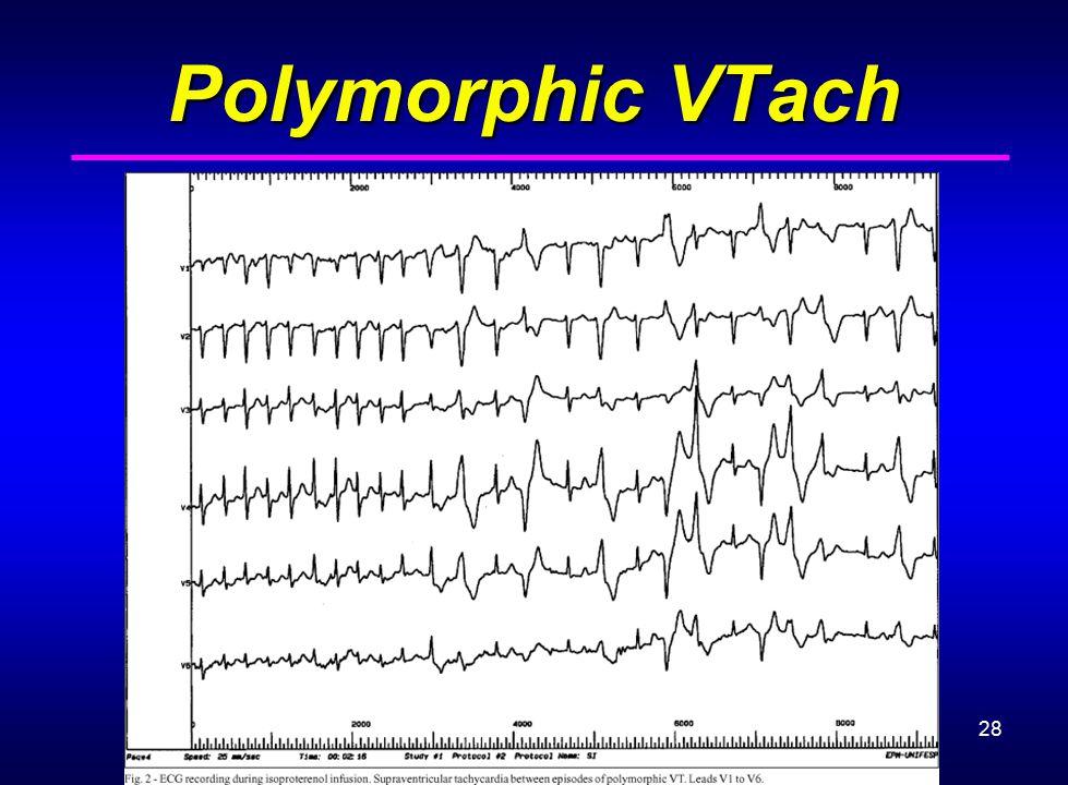 28 Polymorphic VTach
