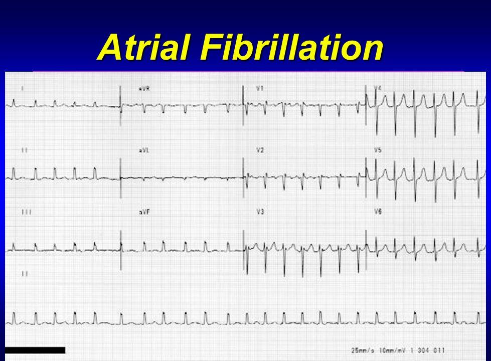 30 Atrial Fibrillation