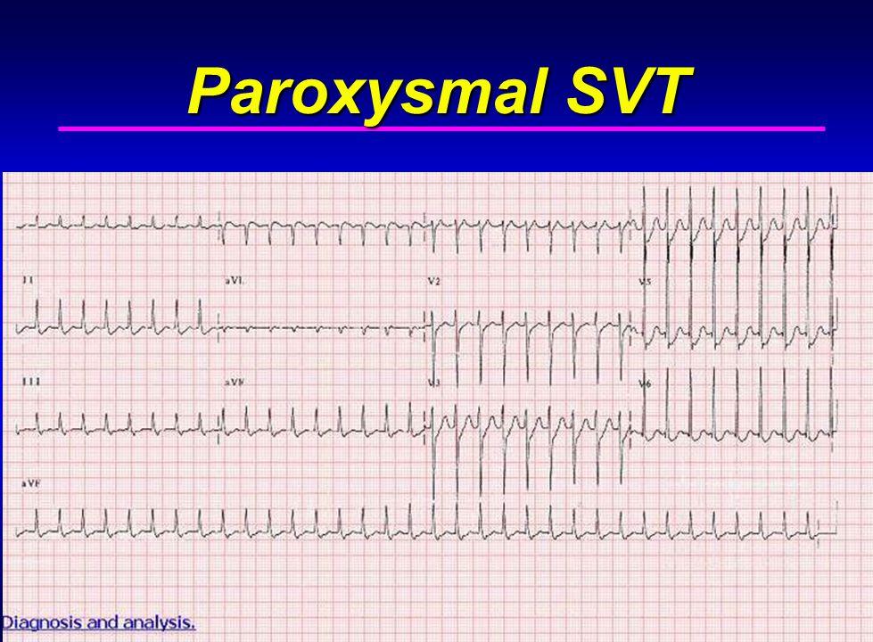 32 Paroxysmal SVT