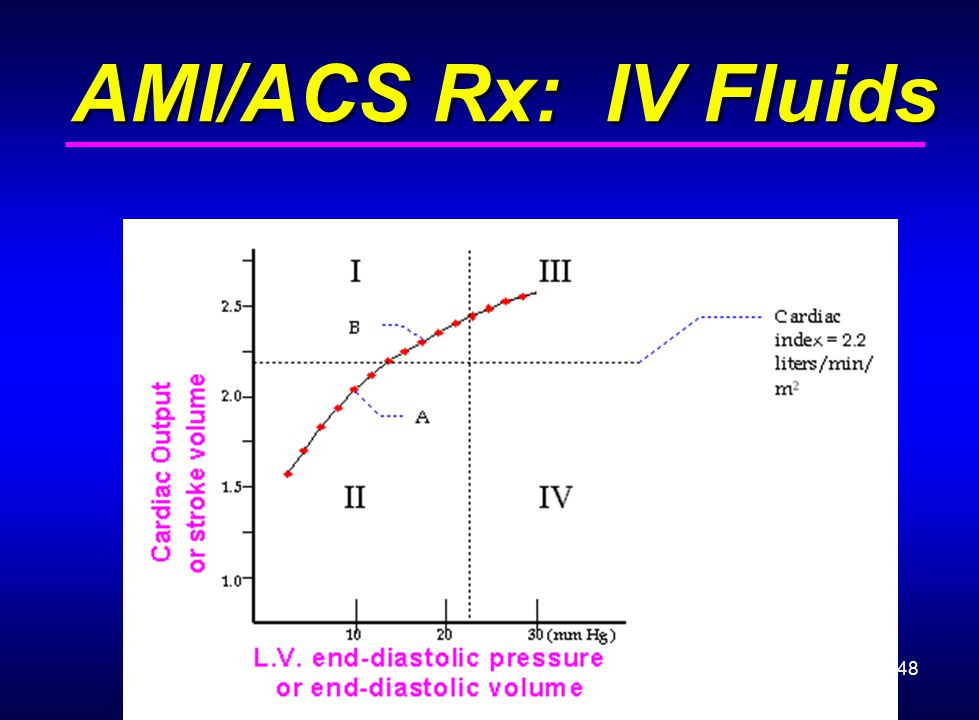 48 AMI/ACS Rx: IV Fluids AMI/ACS Rx: IV Fluids