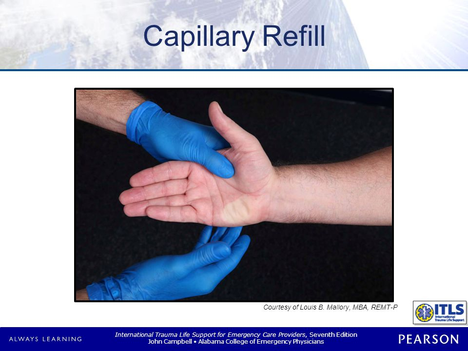 International Trauma Life Support for Emergency Care Providers, Seventh Edition John Campbell Alabama College of Emergency Physicians Capillary Refill Courtesy of Louis B.