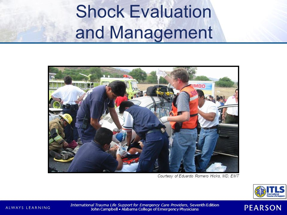 International Trauma Life Support for Emergency Care Providers, Seventh Edition John Campbell Alabama College of Emergency Physicians Shock Evaluation and Management Courtesy of Eduardo Romero Hicks, MD, EMT