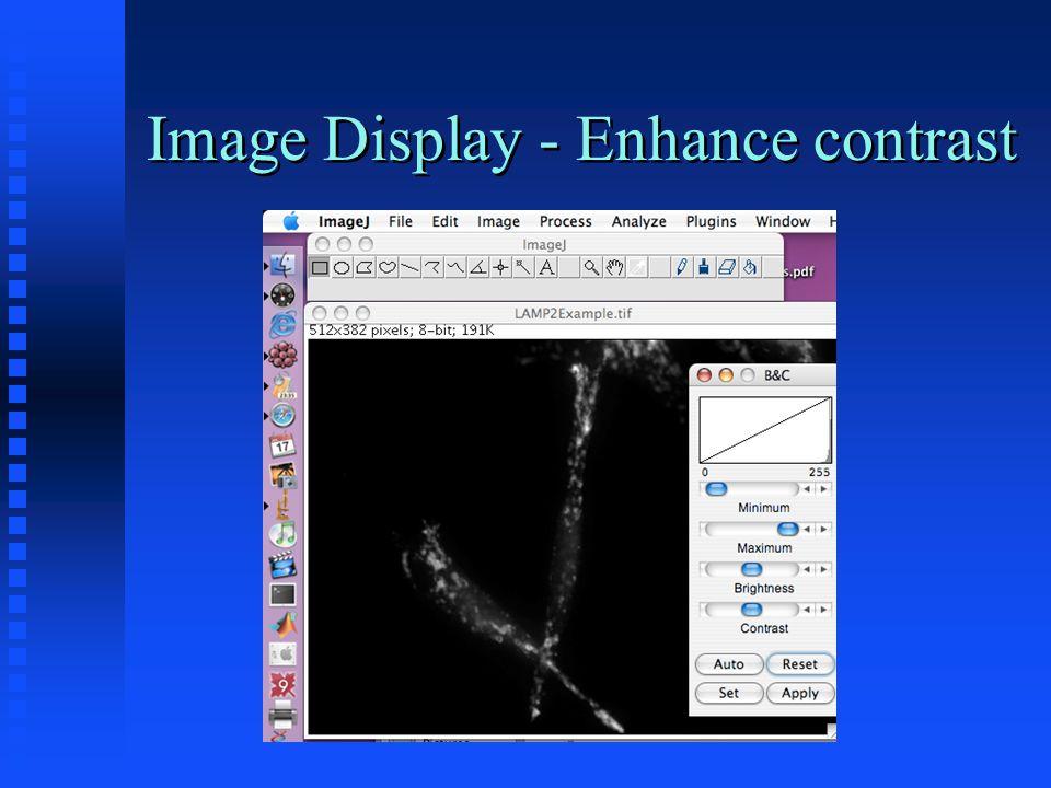 Image Display After enhancement uses full range Original (before contrast enhancement)
