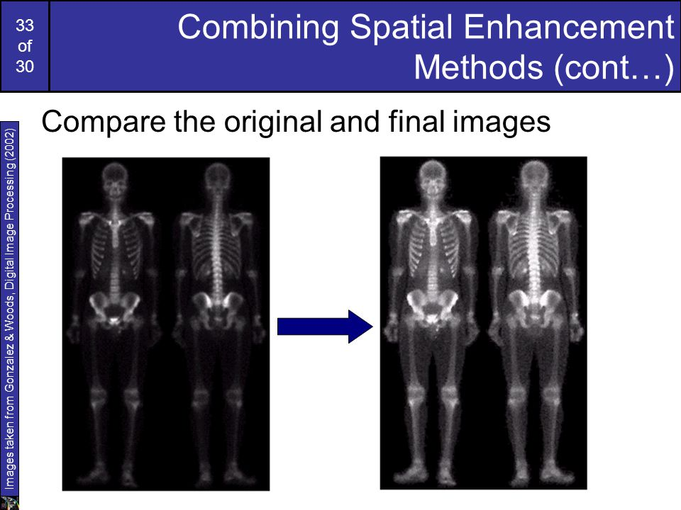 33 of 30 Combining Spatial Enhancement Methods (cont…) Compare the original and final images Images taken from Gonzalez & Woods, Digital Image Process