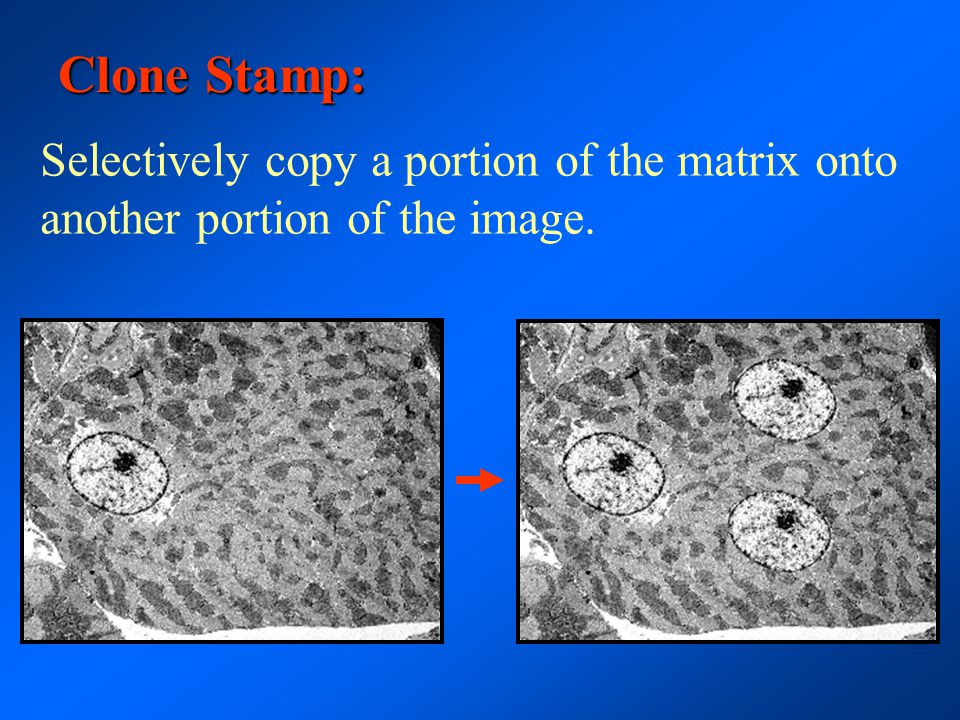 Clone Stamp: Selectively copy a portion of the matrix onto another portion of the image.