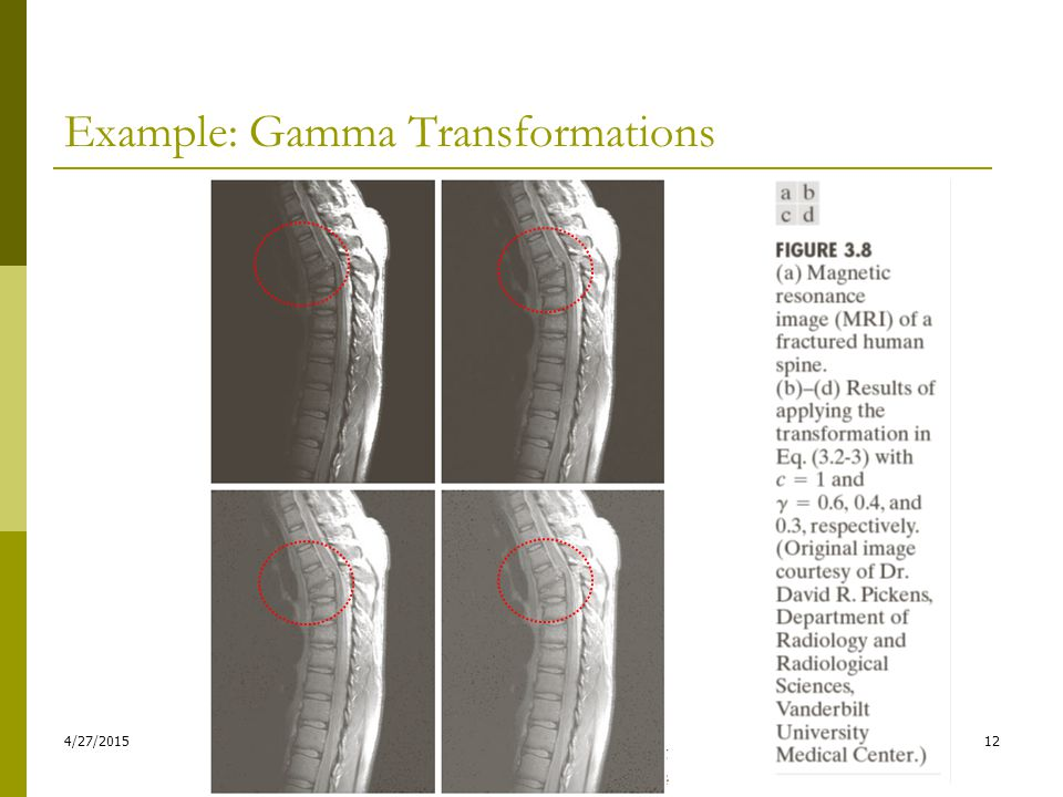Example: Gamma Transformations 4/27/201512